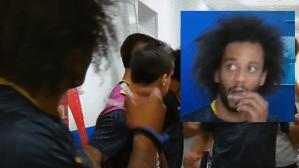 Utilização de alinhadores invisíveis na copa do mundo