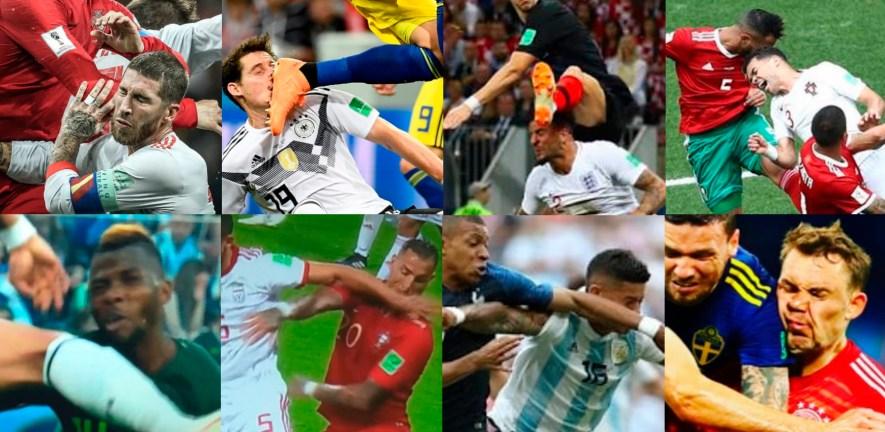 Foto com várias lesões da Copa do Mundo de 2018