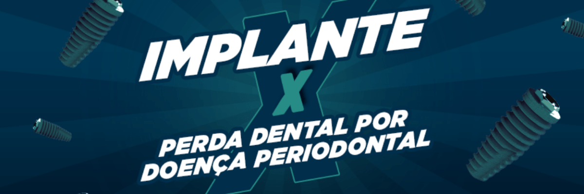 Implante x Perda dental por doença periodontal