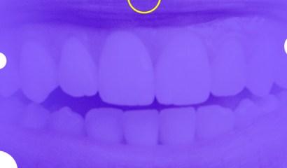 Caso clínico: A odontologia minimamente invasiva em pacientes jovens