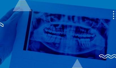 Escolhendo filmes radiográficos: tudo que você precisa saber