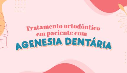 Agenesia Dentária na Ortodontia: Como tratar?