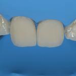 aplicação da resina composta para melhorar a aparência estética