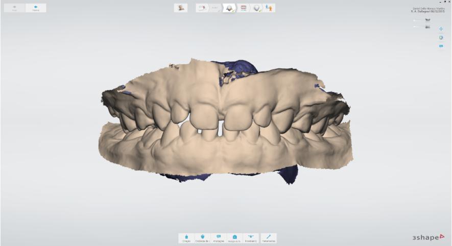 escaneamento intraoral mono