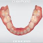 escaneamento intraoral inferior