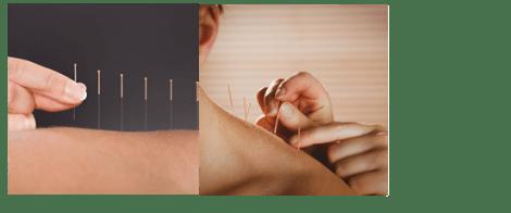 Práticas Integrativas e Complementares utilizando acupuntura no tratamento odontológico