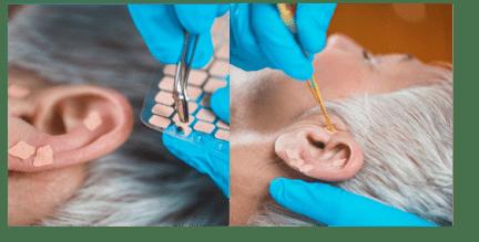 Práticas Integrativas e Complementares utilizando a auriculoterapia