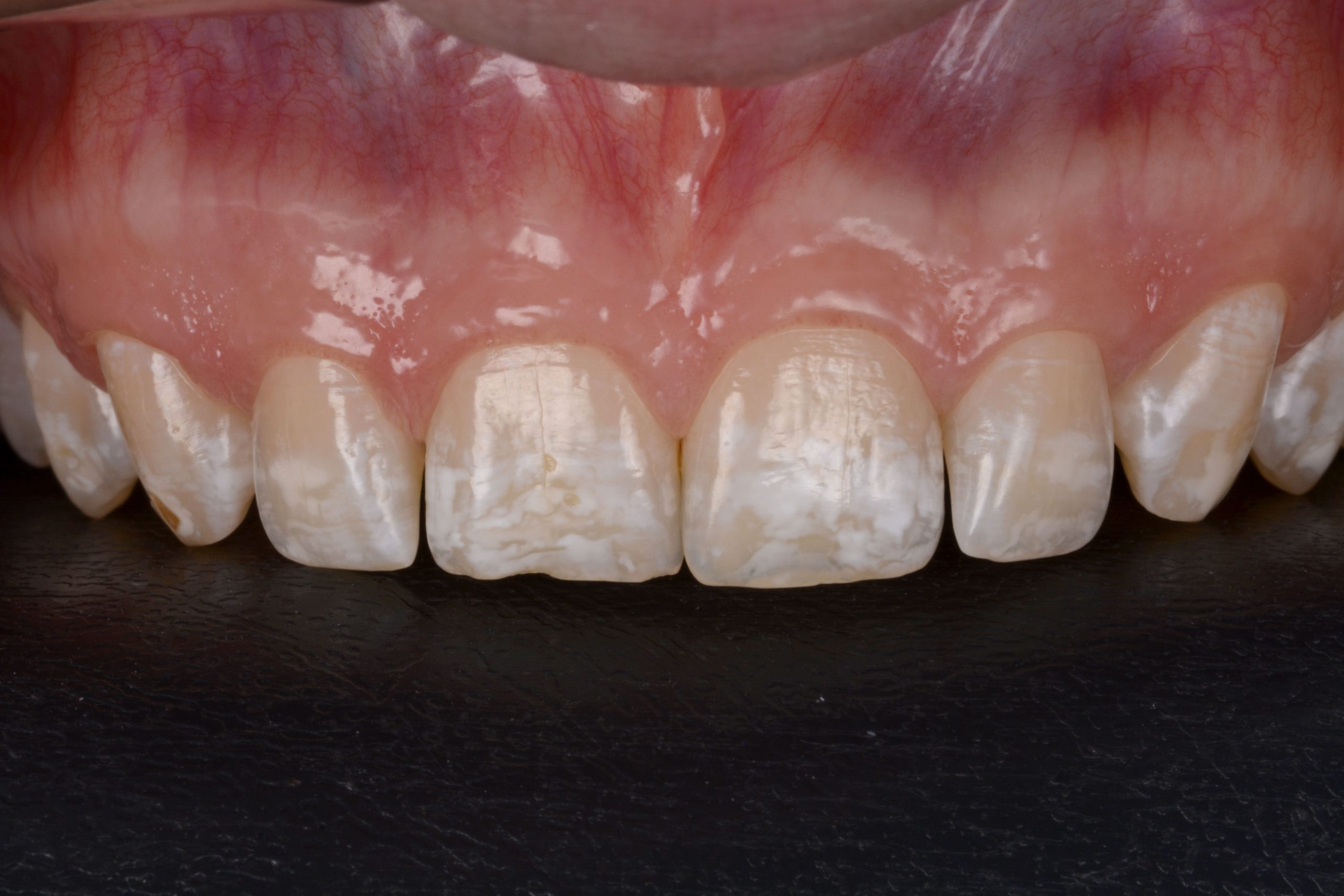 Diagnóstico de fluorose dental em grau moderado com presença de manchas mais intensas entre os dentes 13 ao 23