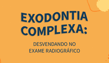 Exodontia complexa: Sinais radiográficos que te ajudam a identificar
