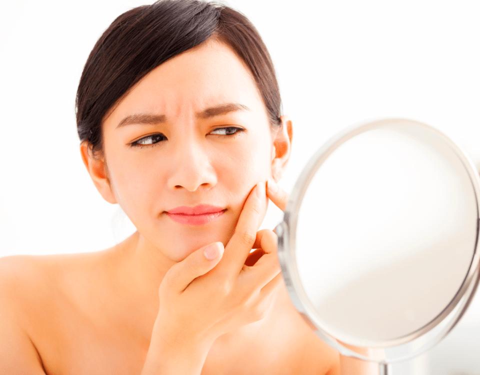 acne-rosto-cuidados