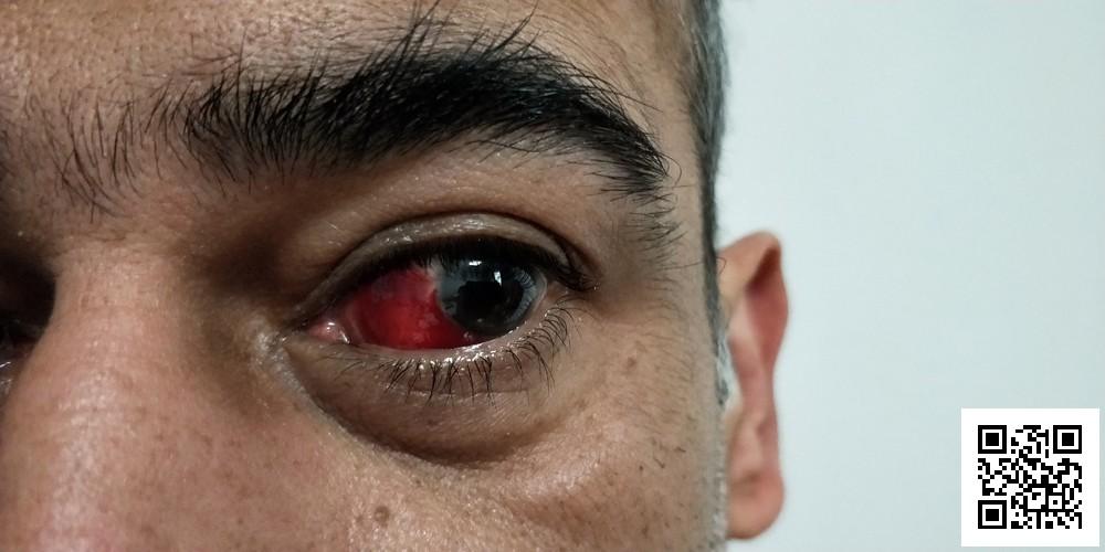 A Broken Blood Vessel in Your Eye