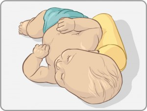 Plagiocephaly positioning