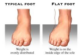 pediatric flat feet