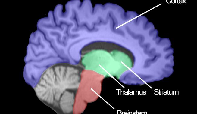Hoe ziet mijn brein eruit?