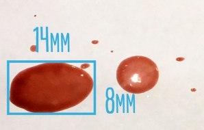 A blood spot with measurements for width and length
