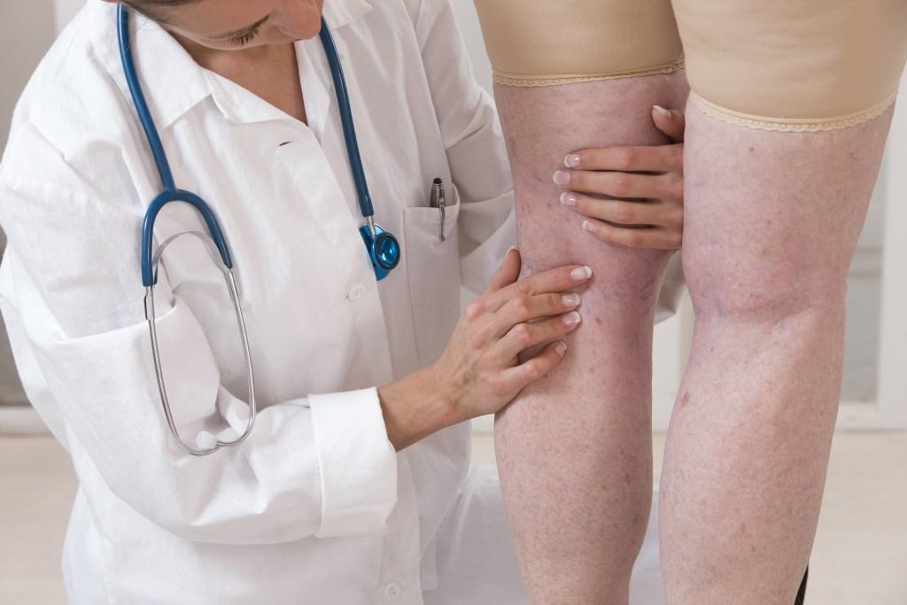Conheça o tratamento de varizes com espuma polidocanol