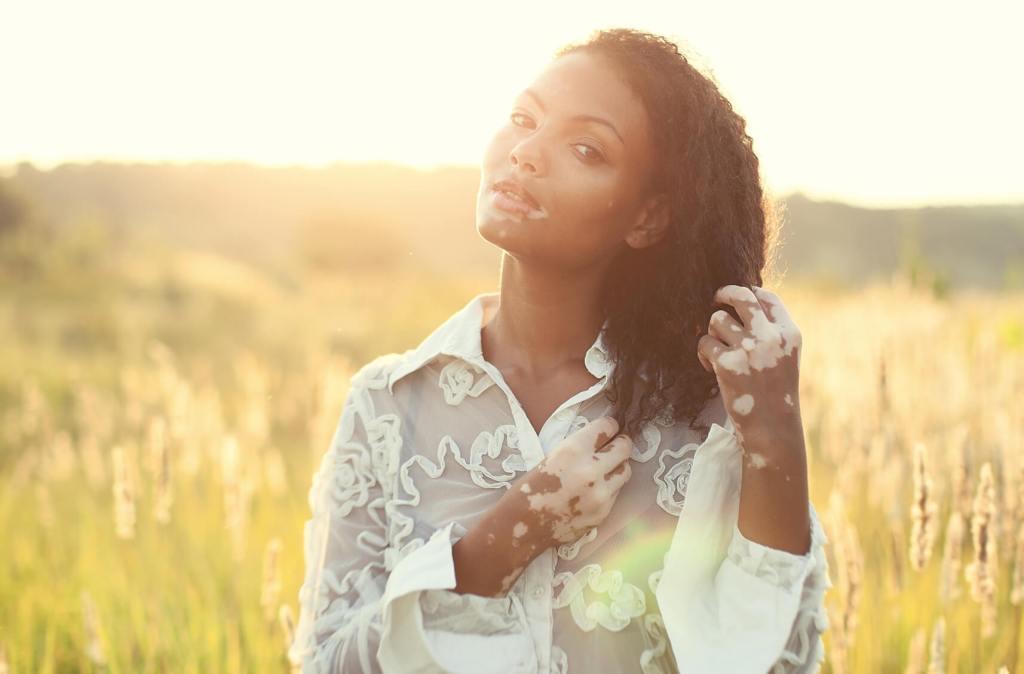 Vitiligo na pele: por que acontece e como evitar?