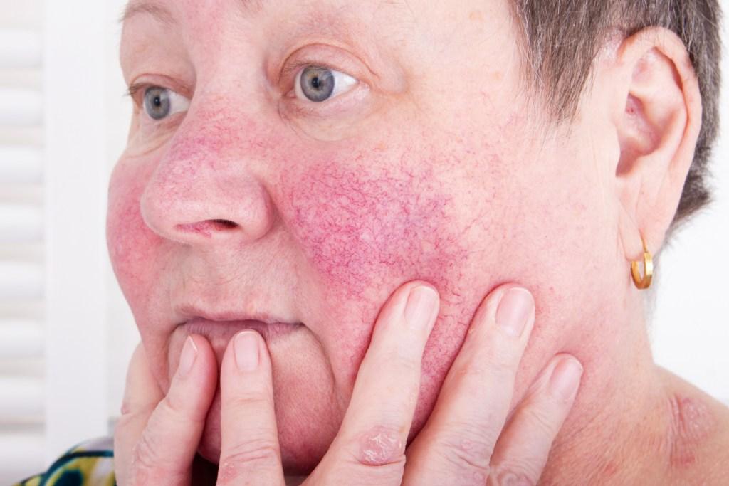 Conheça a doença autoimune lúpus