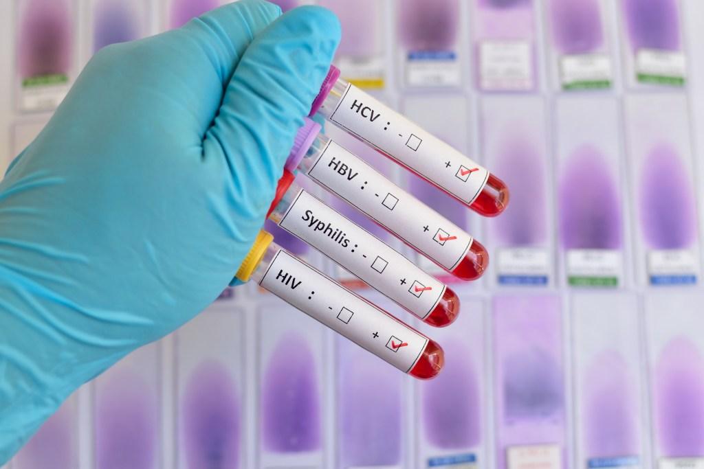 Conheça os sintomas da herpes genital e outras doenças sexualmente transmissíveis