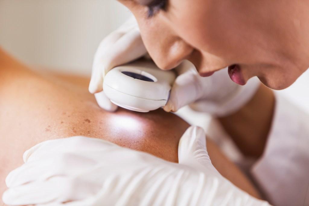 Câncer de pele, de mama e de boca: como se prevenir dos principais tipos da doença