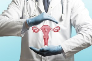 Câncer do Colo do Útero: causas, sintomas e tratamento