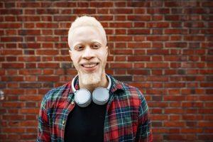 Albinismo: o que é, sintomas e cuidados necessários