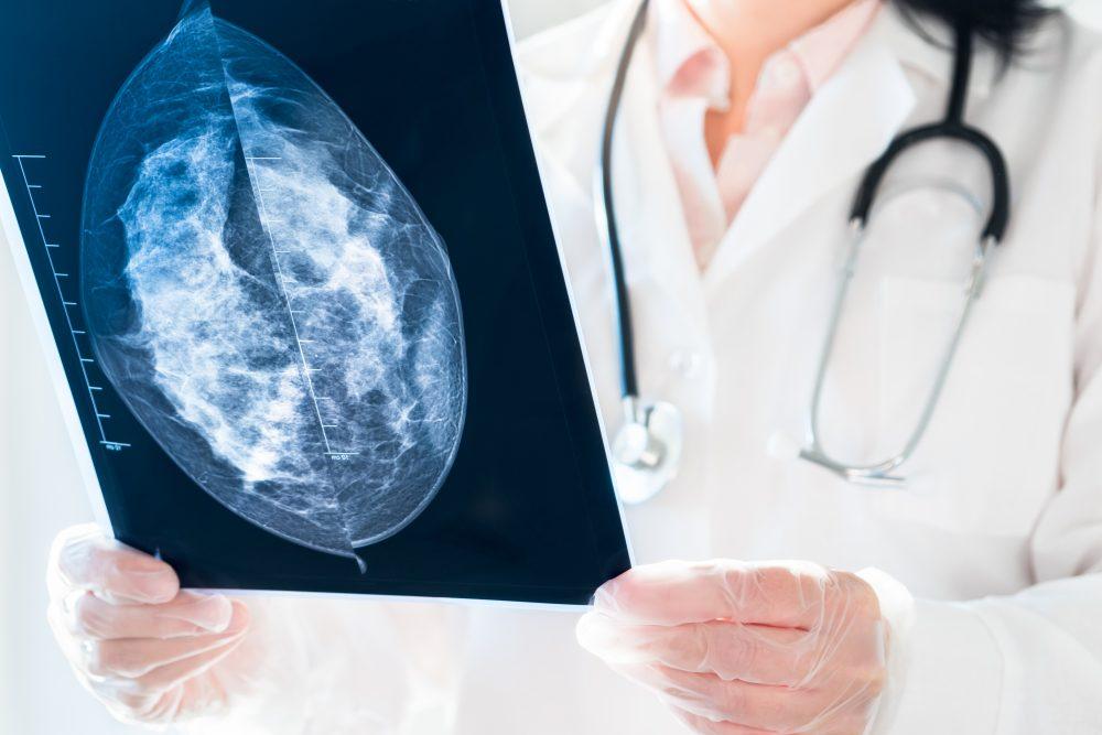 A importância dos exames de mamografia e ultrassonografia