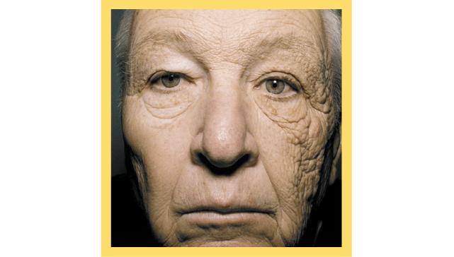 Exposure to UV prone to wrinkles