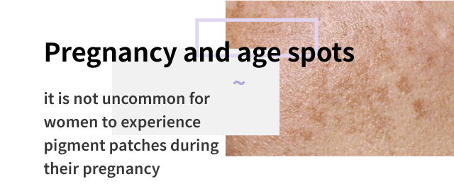 Pregnancy and age spots