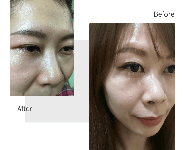 DR's Secret Abby Tsai before and after