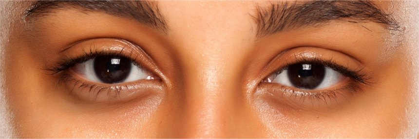 Darker skin tone eye area