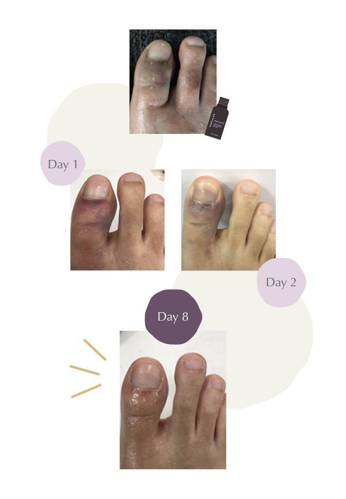 Bruised toe balancing oil review