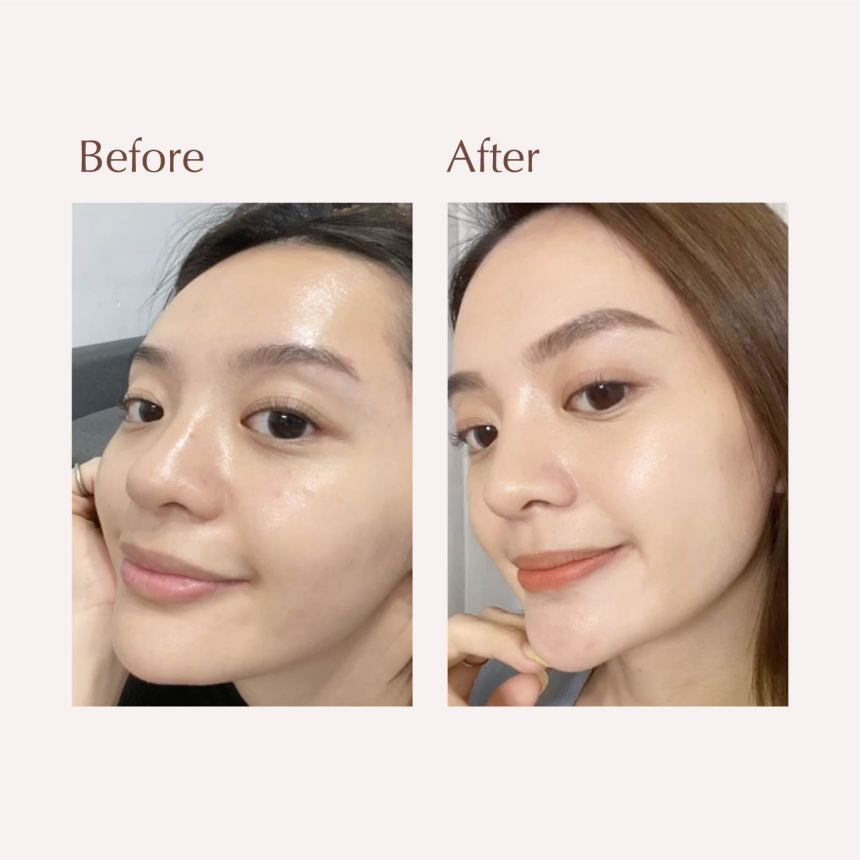 Jessica Testimonial Before And After