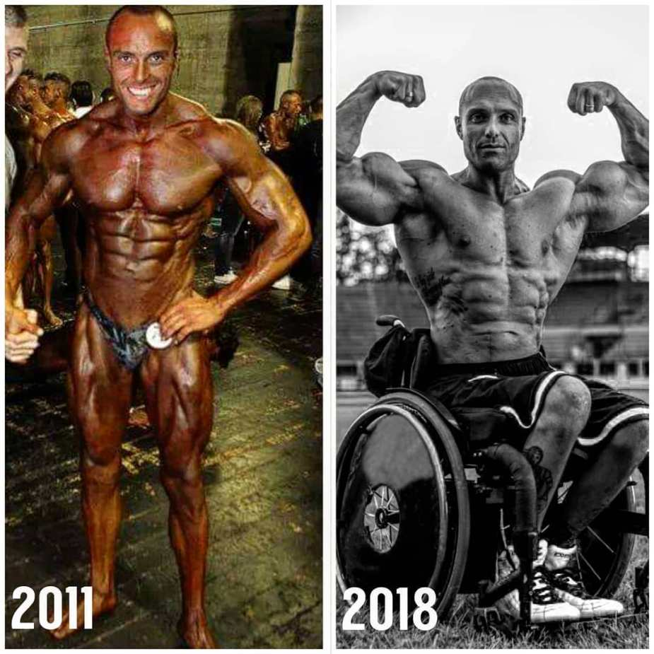 Even though Gabriele had an accident, that didn't change his determination of being a bodybuilder.