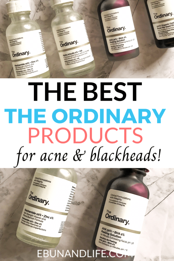 The Ordinary for Acne & Hyperpigmentation: Best Products
