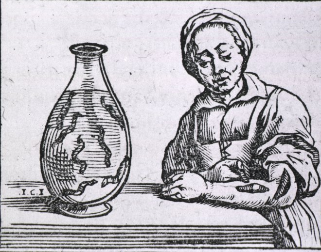 In this 1639 image a woman is treating a wound or illness by attaching several leeches to her forearm. (Read about leeches and other bloodsuckers here.) Engraving by Guillaume van den Bossche, courtesy National Library of Medicine