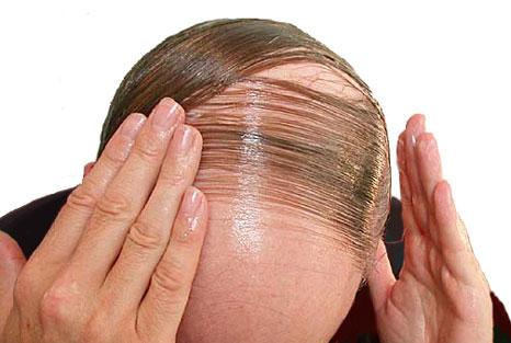 12. Es normal que un ser humano pierda entre 50 y 100 cabellos por día.