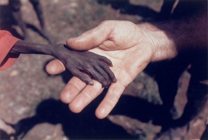 1. Niño desnutrido tomando la mano del misionero.