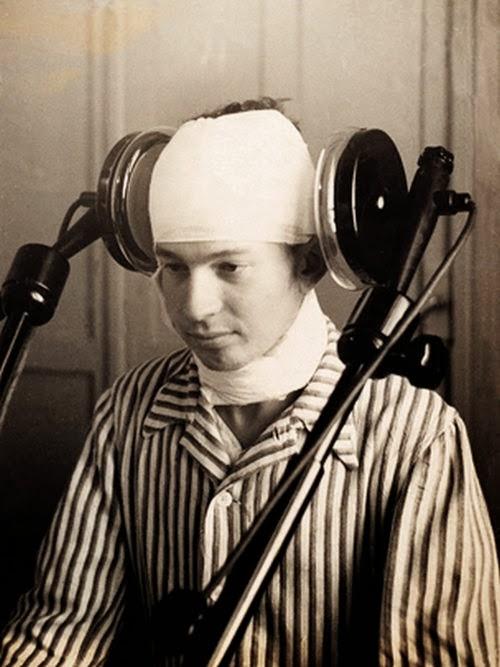 5. Un paciente sometido a tratamiento de diatermia cerebral lateral en 1920