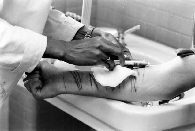 17. Autolesiones en un psiquiátrico. 1964.