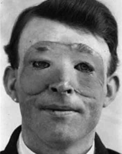 1. Walter Yeo: la primera persona en la que se practicó cirugía estética (1917)