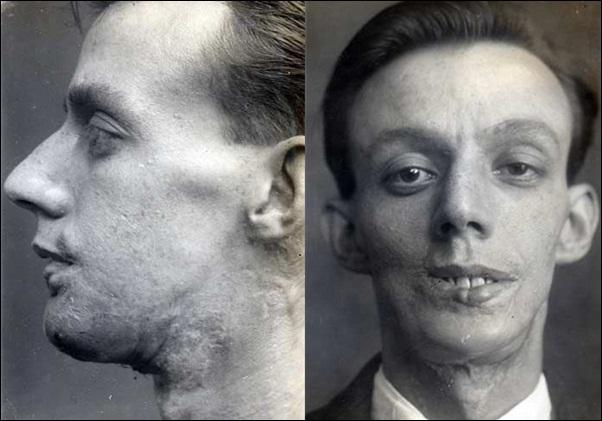 3. Willie Vicarage: cirugía reconstructiva radical en el rostro (1917)