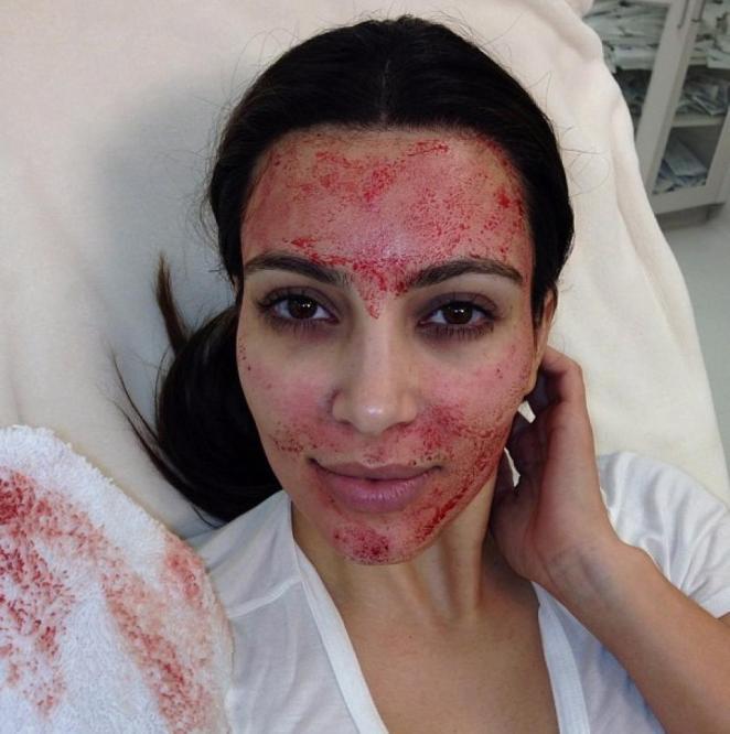 Resultado de imagen para kim kardashian vampire facial