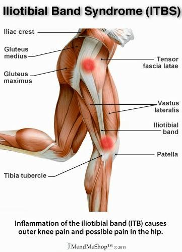 Image result for Síndrome de fricción de la banda iliotibial