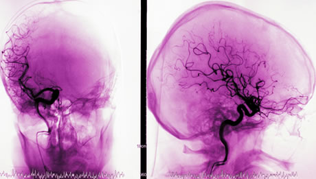 eyewire, angiography, Cerebral Angiography by healthgrades