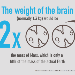 scale of the brain infographic