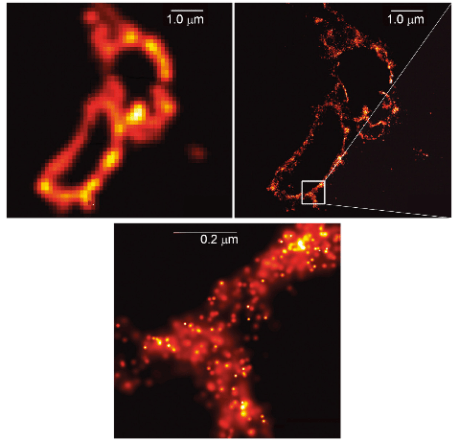 Top right: conventional microscopy Top left: super resolution fluorescence microscopy  Bottom: enlarged SRF image Lysosome membranes, Credit: Eric Betzig, Stefan W. Hell and William E. Moerner, The Royal Swedish Academy of Sciences