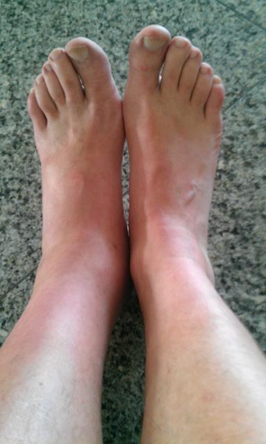Linkes Bein Geschwollen