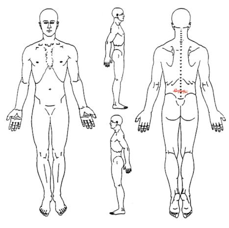 Body chart pre-tratamiento: