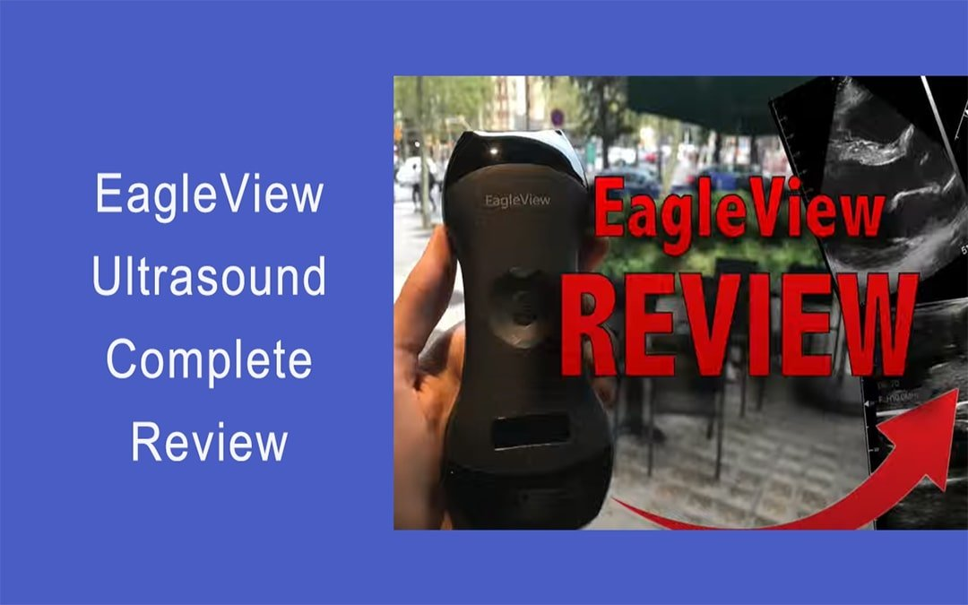 EagleView Ultrasound Review and Comparison with Butterfly iQ & GE Vscan